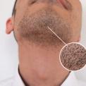 アゴ髭1c㎡あたりに生えている毛の本数は?