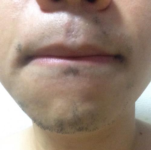 ライトシェア・デザイアで5回目の髭脱毛の経過ドクターコバ銀座院