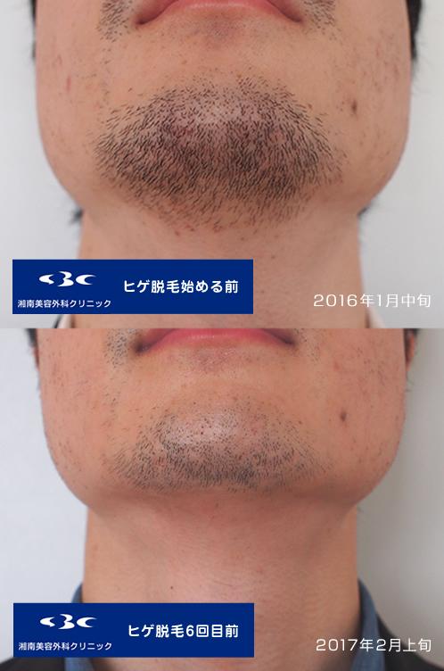 沼南美容外科髭脱毛メディオスター6回目前比較