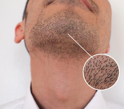 アゴ髭の1平方センチメートル当たりの本数