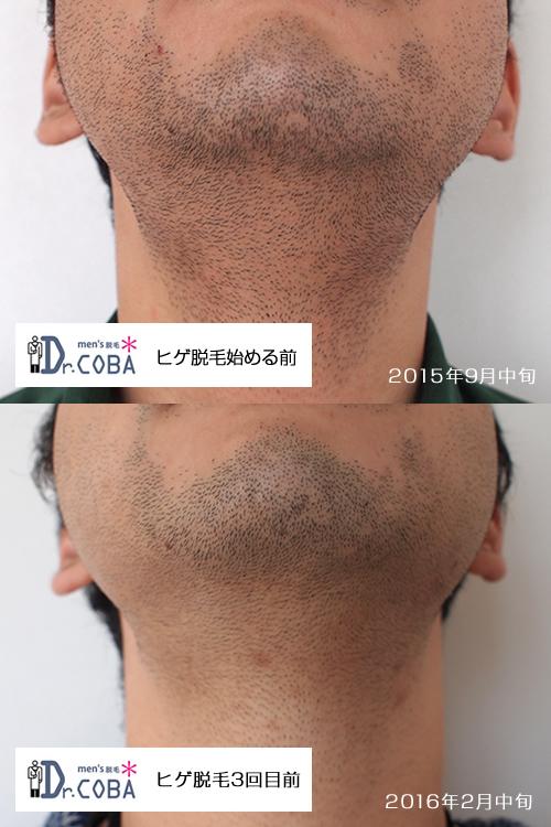 ドクターコバヒゲ脱毛経過3回目脱毛前との比較