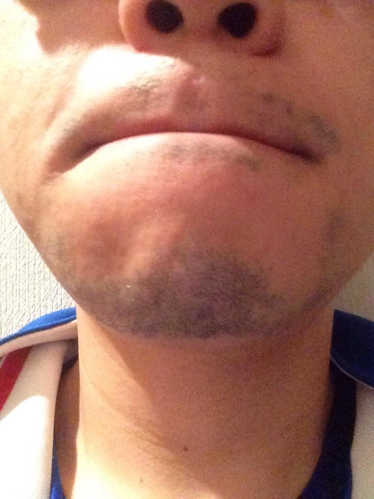 ドクターコバ3回目のヒゲ脱毛施術後から一か月半後