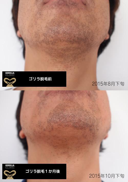 ゴリラ脱毛経過写真1回目1か月後の髭の状態
