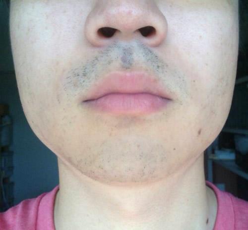 メディオスターでひげ脱毛3回目経過写真1週間ひげを伸ばした状態