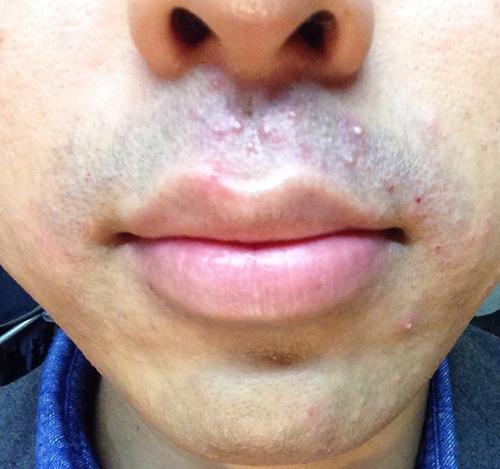 髭脱毛後の毛嚢炎やにきびのケア