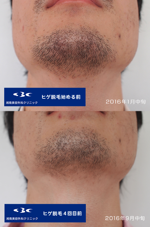 メディオスターNextPro4回目前の髭の経過写真