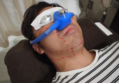 ゴリラクリニック 笑気麻酔