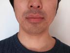 コロッケ君ゴリラクリニック髭脱毛3回目