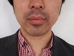 コロッケ君ゴリラクリニック髭脱毛4回目