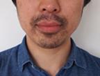 コロッケ君ゴリラクリニック髭脱毛5回目