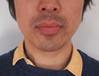 コロッケ君ゴリラクリニック髭脱毛8回目