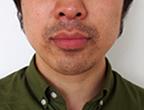 コロッケ君ゴリラクリニック髭脱毛10回目