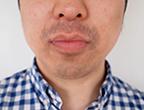 コロッケ君ゴリラクリニック髭脱毛12回目