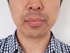 コロッケ君ゴリラクリニック髭脱毛13回目