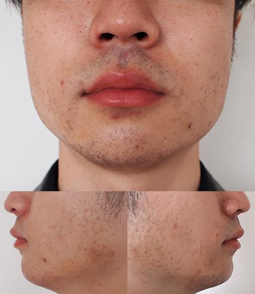 肌荒れ 髭 剃り