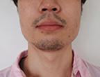 鈴木氏メディオスター脱毛3回目